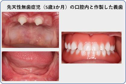 先天性無歯症児(5歳3か月)の口腔内と作製した義歯