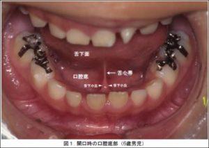 開口時の口腔底部(6歳男児)